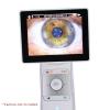EZ-Horus Anterior Lens Ezer
