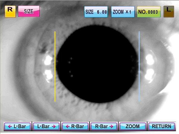 autorefractor keratometer erk-9000 ezer - us ophthalmic