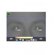 Adaptica Dynamic Pupillometry Application DP-App