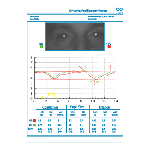 Dynamic Pupillometry Application DP App for 2WIN adaptica - us phthalmic