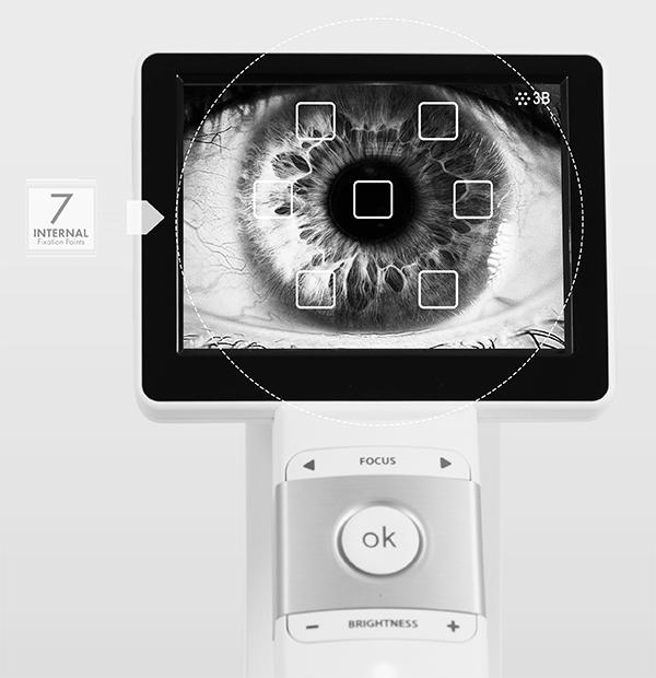retinal camera ez-horus 45 ezer