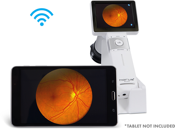 ez horus manual focus camera ezer - us ophthalmic