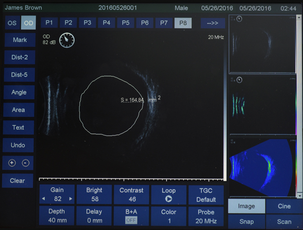 ultrasound eus-2600 ezer - us ophthalmic